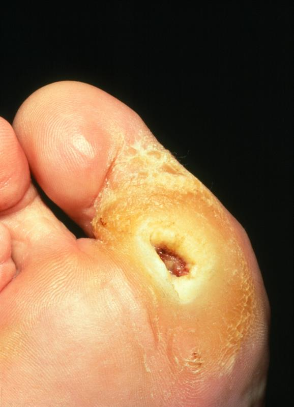 The Underlying Causes Of Foot Ulceration