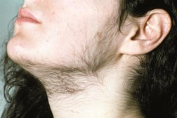 Hirsutism is a sign of polycystic ovary syndrome