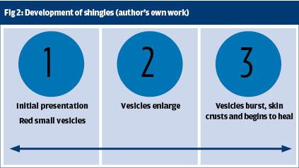 Encourage your older patients to have the shingles vaccine now