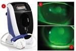 The E-Eye dry eye treatment apparatus